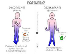 How to remember decorticate and deceberate posturing.
