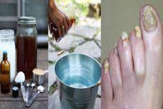 "Nail fungus is not just gross at sight it can lead to serious consequences and m… – "".Designed To Deal With Even The Nastiest Toe & Nail Fungus"" Healthy Diet Plans, Healthy Life, Foot Fungus Treatment, 2 Ingredient Recipes, Toenail Fungus Remedies, Fungal Infection, Health And Beauty Tips, Natural Medicine, Fungi"
