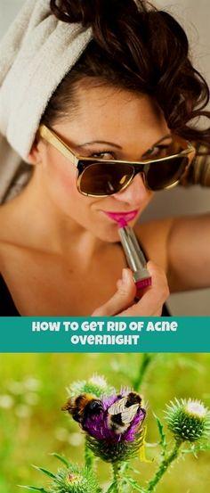 4c837fabdafa how to get rid of  acne overnight 581 20180907030322 64  acne youtube  girlfriend