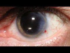 diabetic retinopathy symptoms - http://nodiabetestoday.com/diabetes/diabetic-retinopathy-symptoms/?http://www.precisionaestheticsmd.com/