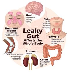 4 Steps To Healing A Leaky Gut and Auto Immune Disease | http://www.physique4life.com/4-steps-to-healing-leaky-gut/