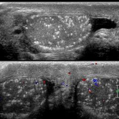 Testicle - Testicular microlithiasis -  Radiopaedia.org - Testicular microlithiasis  is a relatively common condition that represents the deposition of multiple tiny calcifications throughout both testes.   The diagnosis is only made with more than five calcifications are detected. In the vast majority of cases testicular microlithiasis is found bilaterally. Found incidentally, asymptomatic.