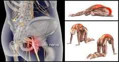 How To Workout With Sciatica Using These 8 Relaxing Poses That Offer Relief - GymGuider.com Yoga For Sciatica, Sciatica Stretches, Sciatica Pain Relief, Sciatic Pain, Sciatic Nerve, Nerve Pain, Lower Back Pain Exercises, Lower Back Pain Relief, Stretch Routine