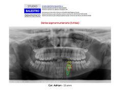 Casi clinici ortodontici Denti soprannumerari http://www.studiodentisticobalestro.com/2014/12/dente-soprannumerario.html