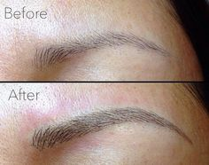 Top Ten Questions on Cosmetic Eyebrow Embroidery