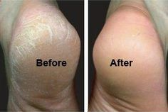 Soften and Get Rid of Tough Calluses - DIY Baking Soda Beauty Tips DIY baking soda natural solution: blend 2 tablespoons of baking soda in a basin of warm water and add a few drops of lavender oil. After a nice long soak, scrub them away using 3 parts baking soda, one part water, and one part brown sugar. Follow with an application of a rich moisturizer and a warm towel foot wrap. .