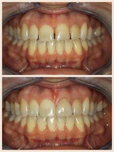 Invisalign Plantation, FL #Before&After #teeth  #dentistry http://www.plantationdentalcare.net