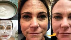 Thousands of Women Are Using This Homemade Cream to Rejuvenate Their Facial Skin and Get Rid of Wrinkles! You Will Look 10 Years Younger Overnight (RECIPE) Lemon Juice Face, Lemon Face, Wrinkle Remedies, Baking Soda And Lemon, Les Rides, Face Skin Care, Beauty Recipe, Tips Belleza, Acne Scars