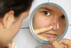 Tips To Prevent Pimples, pimples, best ways to prevent pimples, pimples appear , Avoid Makeup, Expired face products may cause pimples, skin, pimple free skin, beautiful skin, skin care