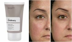 Brighten and restore an even tone and texture to your skin with this lightweight cream-gel. Azelaic Acid Suspension is a lightweight cream-gel with Skin Care Routine Steps, Skin Routine, The Ordinary Azelaic Acid, The Ordinary Night Cream, The Ordinary Textured Skin, The Ordinary For Redness, The Ordinary Skincare Guide, Haut Routine, Best Acne Products
