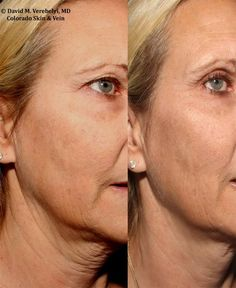 7 Best Ultherapy-Skin tightening images in 2014   Skin treatments