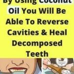 By Using Coconut Oil You Will Be Able To Reverse Cavities & Heal Decomposed Teet. - Coconut Oil Uses - Dental Coconut Oil For Acne, Pure Coconut Oil, Reverse Cavities, Heal Cavities, Toxic Foods, Coconut Health Benefits, Liver Cleanse, Body Treatments, Teeth Cleaning