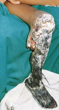 Krokodil russian drug that eats flesh now in the us 28 pics