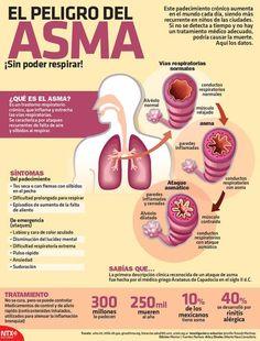 ¿Qué es el asma? Síntomas y tratamiento. #infografias #asma #salud Medicine Notes, Medicine Student, Medicine Book, Medical Facts, Medical Care, Health And Wellness, Health Tips, Health Care, Asthma Remedies