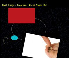 Nail fungus treatment vicks vapor rub - Nail Fungus Remedy. You have nothing to lose! Visit Site Now