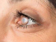 Ezt teszik a nap káros UV-sugarai a szemmel!
