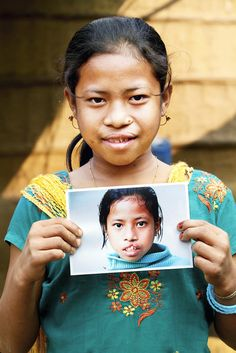 Astami from India before and after Operation Smile provided her free cleft lip surgery. Her life is forever changed!  http://www.operationsmile.org