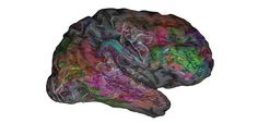 New Brain Atlas Reveals Where Words Are Stored
