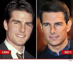 Tom Cruise: Good Genes or Good Docs? Logan Lerman, Tom Cruise, Amanda Seyfried, Celebrity Plastic Surgery, Val Kilmer, Celebrities Then And Now, Z Cam, Good Genes, Shia Labeouf