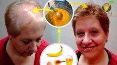 Esta Mujer Aplicó Aspirina en el Pelo y su Cabello Crece como Loco, Realmente…