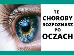 Oczy umożliwiają rozpoznawanie niektórych chorób nie okulistycznych Eyes, Health, Health Care, Healthy, Salud
