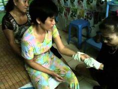 kiều linh anh trương chữa cho bệnh nhân chân tay bị co cứng phần --6