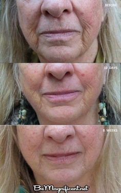 Can't make up these results. Nerium AD works. Try it 30 day risk free. Jills24.nerium.com