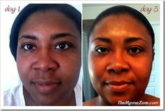 Makari skin Care -Before and After Even Skin Tone, Fashion History, Skin Care, Hair Styles, Color, Black, Hair Plait Styles, Black People, Skincare Routine