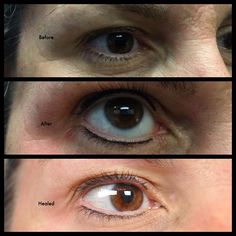 Upper and Lower Liner   #browlife #browtattoo #hairstrokes #microblading #cosmetictattoo #permamentmakeup #micropigmentation #brushstrokes #semipermanentmakeup #hairstrokebrow #eyebrows #browfeathering #tattooedeyebrows #brows #3dbrows #microstroking  #mua #tattoo #makeup #pmu #hdbrows #tattooing #tattooartist #eyebrowtattoo #spcp #browfacts