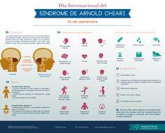 Día Internacional del Síndrome de Arnold Chiari, Infografía Medical Times