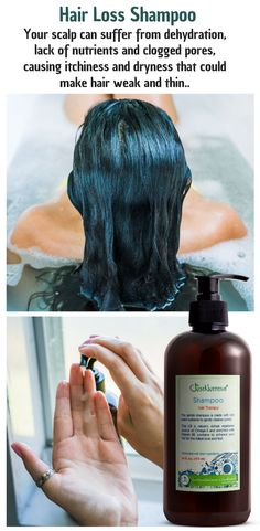 When one experiences hair loss, the chemicals or ingredients that are in your hair care products may be to blame. These may be too harsh or damage your scalp and follicles while leaving residue. Natural Hair Care, Natural Hair Styles, Natural Shampoo, Natural Skin, Organic Shampoo, Oil For Hair Loss, Hair Loss Shampoo, Prevent Hair Loss, Hair Loss Treatment