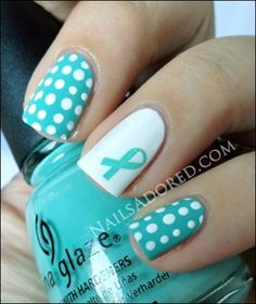 PCOS Awareness Nails by Nails Adored (September is PCOS Awareness month. I have PCOS, so it is a cause that means a lot to me. For more info, go here: http://women.webmd.com/tc/polycystic-ovary-syndrome-pcos-symptoms)