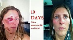 Before cellular Rejuvenation Serum and 10 days after Cellular Rejuvenation Serum