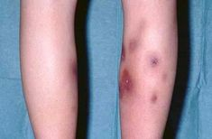 The disease Erythema nodosum is a kind of skin inflammation which is positioned in a portion of the skin's fatty layer. This particular disease outcomes in painful, reddish, tender lumps usually located in the legs front under the knees.... http://www.natural-health-news.com/erythema-nodosum-symptoms-causes-diagnosis-and-treatment