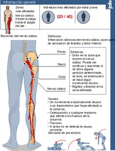 Qué es la Ciática y el Lumbago y cómo puedes tratarlo - Vida Lúcida Health And Beauty, Health And Wellness, Health Care, Health Fitness, Nursing Notes, Acupressure, Medical Care, Chiropractic, Massage Therapy