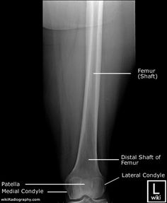 Radiograph x ray of the ankle anatomy on an anterior view radiographic anatomy femur ap distal ccuart Images