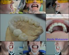 Closing a gap between teeth takes just a few days with Dental Crowns. These Crowns were designed on the Cad Cam Computer and Crafted in the dental clinic. Turkey Holidays, Smile Makeover, Dental Bridge, Cad Cam, Smile Design, Dental Crowns, Dentist In, Dental Implants, Clinic