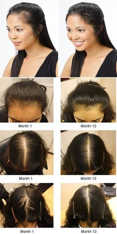 how to stop hair fall after delivery