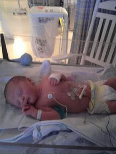 Paula's Story - Paula Kathryne was born 6 weeks early on November 17, 2009.  She spent 2 days in the NICU and a total of 5 in the hospital.  We soon discovered that she had Tetralogy of Fallot, Pulmonary Valve Stenosis and an Atrial Septal Defect.  She had Open Heart Surgery when she was 3 months old.  She faces a future Pulmonary Valve Replacement.  Paula Kathryne is now 2 years old and is doing amazing!  She loves to color, can count to 5, knows her colors and can sing most of Twinkle…