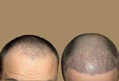 Hair Transplant increasingly on the Rise in Dubai