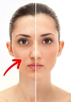 How to Remove Pimple Marks? Natural Treatments for Pimple Marks. How to Get Rid of Pimple Marks on Face? Ways to Treat Pimple Marks Naturally. Black Spots On Face, Brown Spots On Skin, Dark Spots, Age Spots On Face, Facial Warts, Warts On Face, Face Facial, Scar On Face, Scar Removal Cream