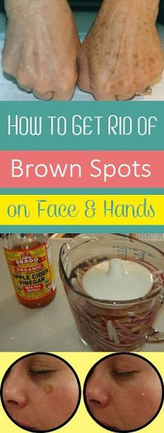 How to Get Rid of Brown Spots on Face and Hands