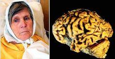 Como evitar a perda da memória e o mal de Alzheimer fazendo este exercício todas as noites antes de dormir! | Cura pela Natureza