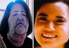 A plastic surgery addict injected cooking oil into her face when doctors refused to give her any more silicone. Former model Hang Mioku has been left permanently disfigured after trying her at home solution for silicone injections.