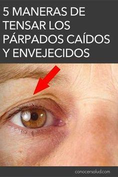 A medida que envejecemos, también lo hace nuestra piel. Es un proceso natural e inevitable. La piel alrededor de los ojos es una de las primeras partes en cambiar, ya que es bastante delgada. ¿Pero se pueden arreglar los párpados caídos? Con algunos trucos, usted puede estirar la piel. Esto es aún más importante si los párpados caídos alteran la visión. De lo contrario, para la mayoría de las personas, la piel floja es una cuestión puramente cosmética. Estas soluciones no son una solución…