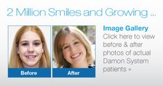 Braces Image Gallery Damon Braces, Before After Photo, Gallery, Image, Roof Rack