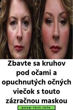 Zbavte sa kruhov pod očami a opuchnutých očných viečok s touto zázračnou maskou Aloe Vera