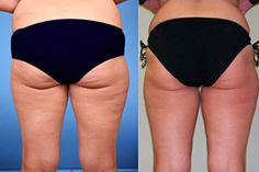 free cellulite removal presentation . Weird tips to help get rid of cellulite