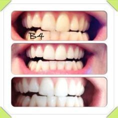 natural teeth whitener. Results after only 2 times! Only do this once a week until you get your desired white for your teeth. Then only once a month to maintain. 1tsp hydrogen peroxide, 1tsp baking soda, 1/2 tsp water, dab of toothpaste. Mix and brush for strictly 2 minutes max then rinse with water. You'll see results immediately. Be sure to take before and after photos!! FYI, my gums are very sensitive so I do top first then rinse and then do bottom and rinse. Good luck!! by mildred