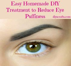 Absolutely Wonderful DIY Treatment to Reduce Eye Puffiness